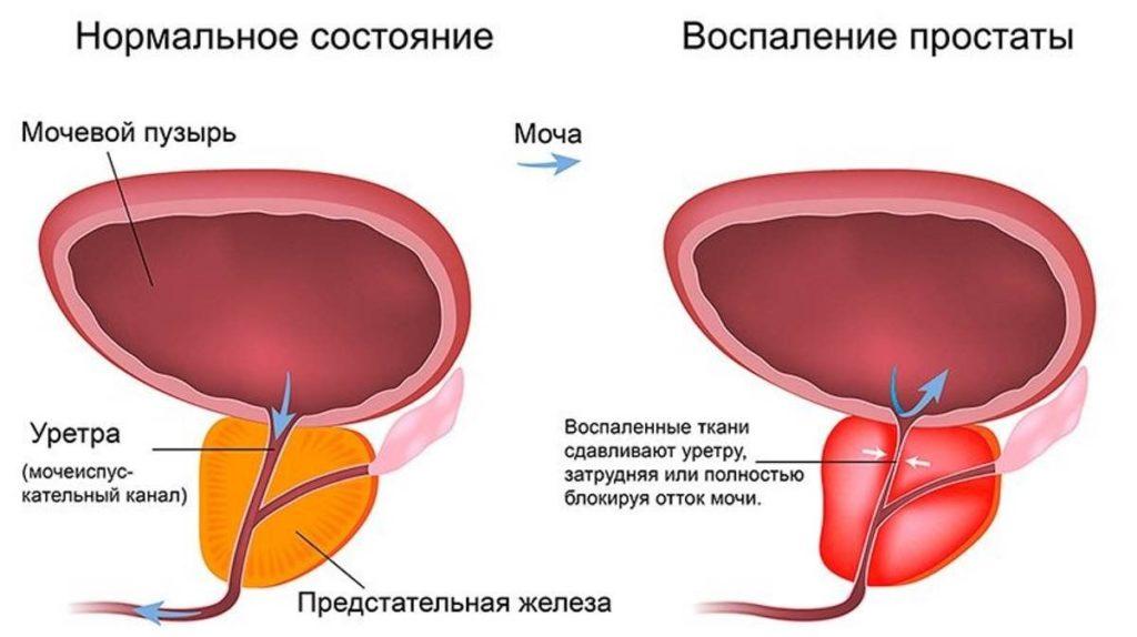 виды заболевание простатита